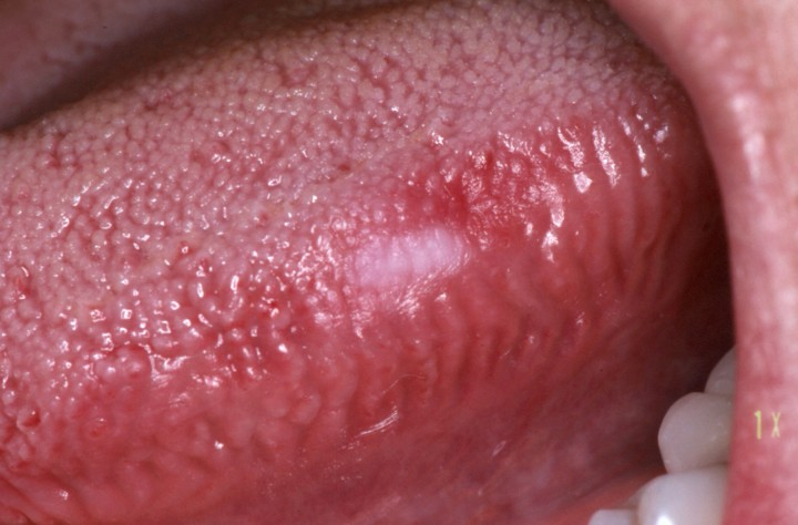 13 Red or White Patches or Sores Inside the Mouth