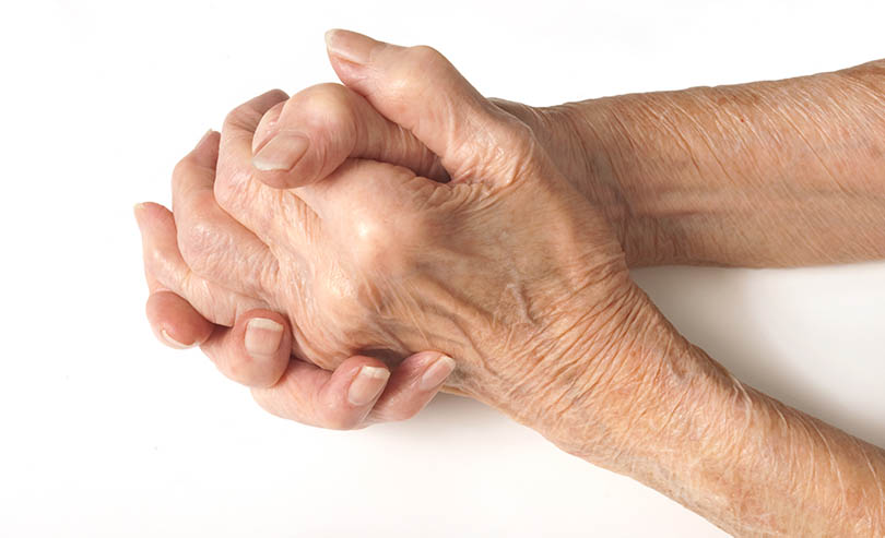 Warning Signs of RA - Swelling In Knuckles - #2